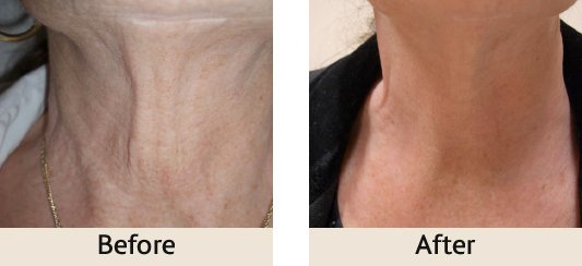 before-and-after-intracel-treatment-dr-rita-rakus-clinic