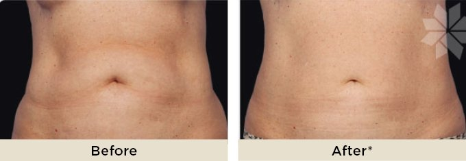 before-and-after-coolsculpting-body-contouring-on-stomach-abdomen