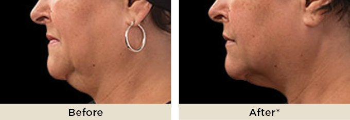 before-and-after-coolsculpting-body-contouring-on-double-chin