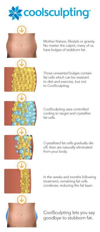 coolsculpting process diagram